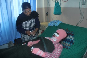 Acid attack victim Sangita Magar